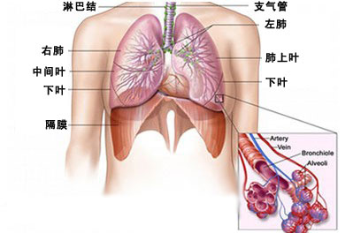 慢性支气管炎病因有哪些