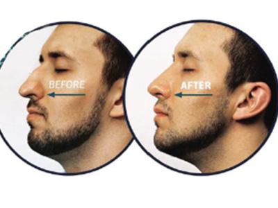 哪种鼻子让男人更加完美?
