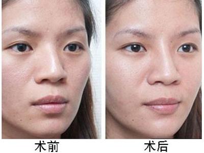 假体隆鼻前后对比 假体隆鼻对比图片