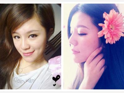 美女注射隆鼻对比图哪个更美