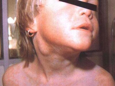 颌下淋巴结肿大-早期白血病的症状是什么