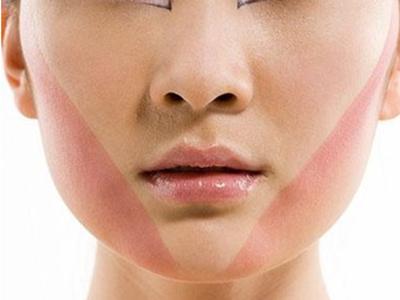 下颌角磨骨瘦脸手术后需要注意什么_飞华健康网