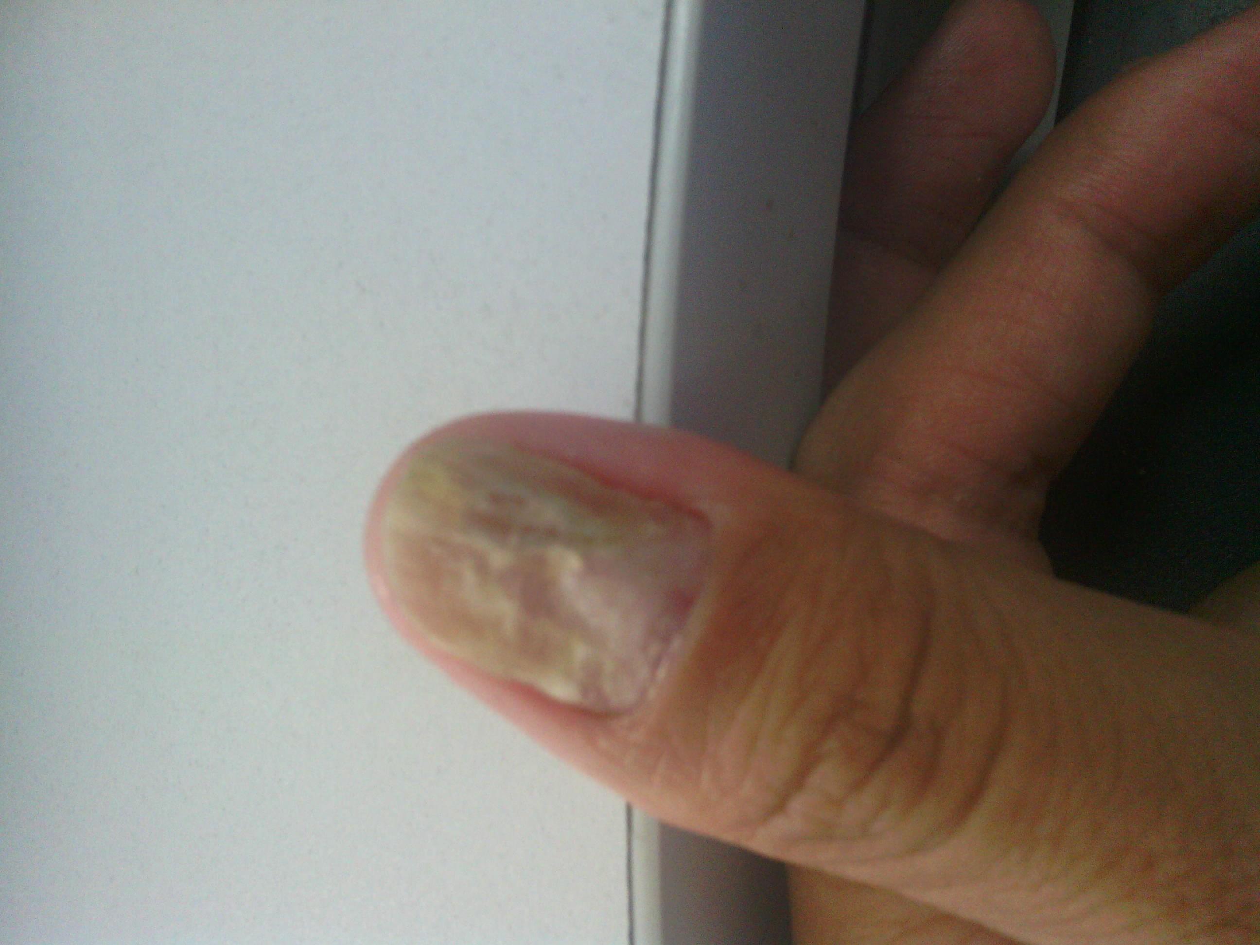 治疗灰指甲的偏方有哪些