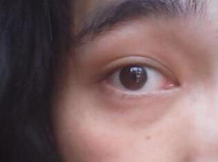 红眼病怎么传播,如何治疗?