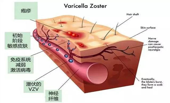 解带状疱疹前期症状才能及早治疗