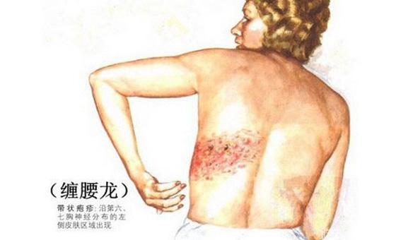 带状疱疹的发病症状